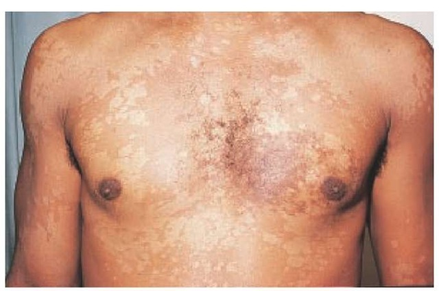 Fungal Bacterial And Viral Infections Of The Skin Part 2