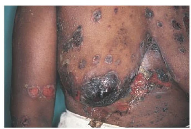 African herpes medicine - 1 6