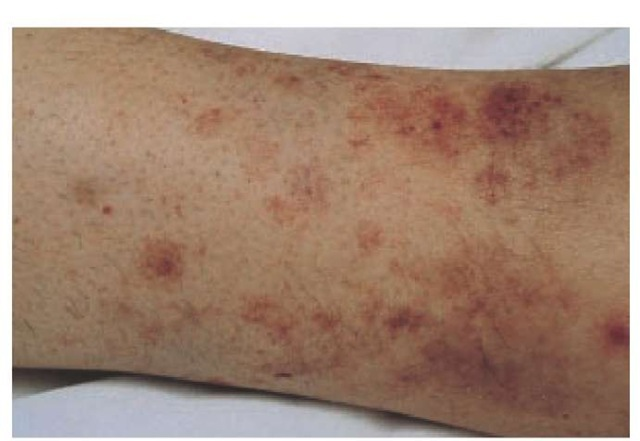 Leukocytoclastic vasculitis developed in this 47-year-old woman taking hydrochlorothiazide.