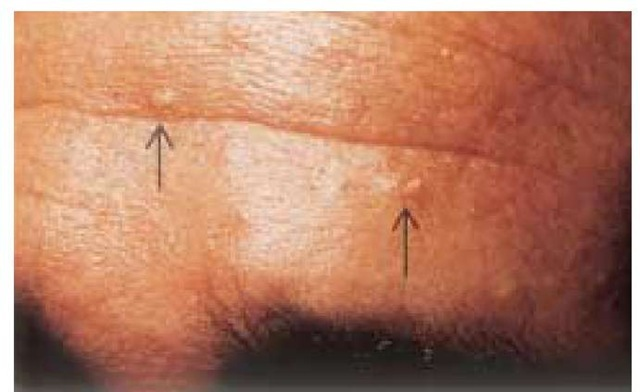 Skin-colored or yellowish, often umbilicated papules of sebaceous hyperplasia, as seen on the forehead, may clinically resemble basal cell carcinomas.