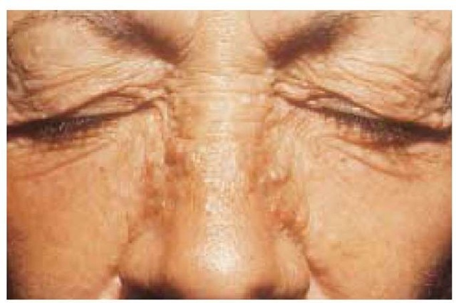 Symmetrical papules of trichoepithelioma appear on the eyelids and nasolabial areas and may be inherited as an autosomal dominant trait.