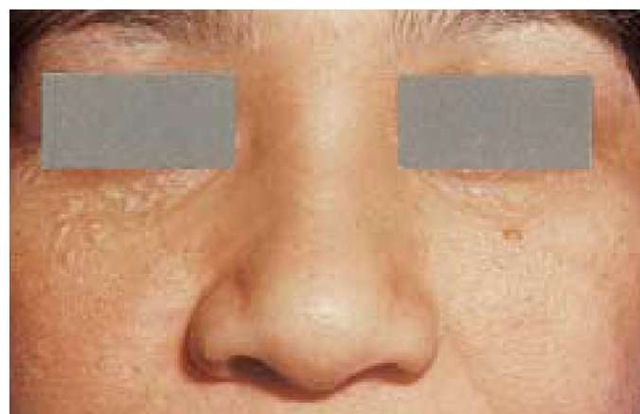 Syringomas—benign tumors of eccrine ducts—are commonly seen on the face, especially on the lower eyelids.