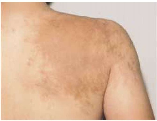 Becker nevus, an acquired localized malformation of epidermal melanocytes that may be associated with hypertrichosis, is seen on the shoulder.