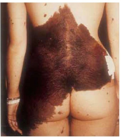 This form of congenital giant pigmented hairy nevus is associated with an increased risk of malignant melanoma, which develops within the lesion.