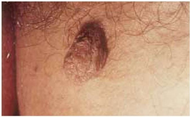 Skin tags, also called acrochordons or soft fibromas, are skin-colored or tan papules. They are commonly seen in such intertriginous areas as the groin or axillae.