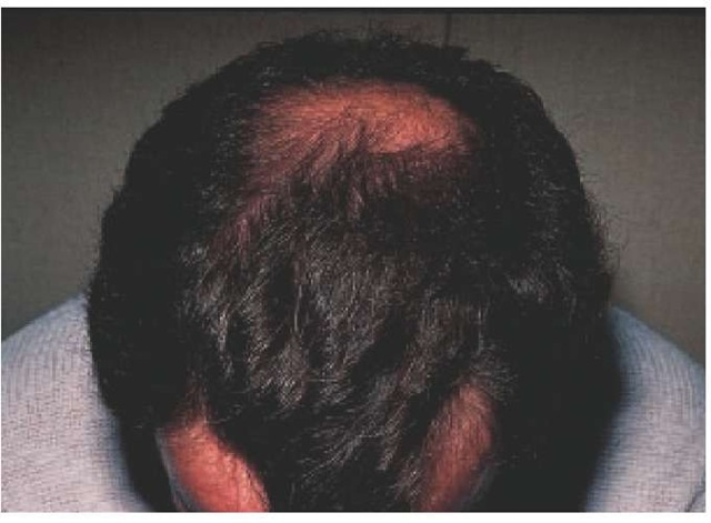 Bitemporal recession and vertex balding are present in this patient with male pattern androgenetic alopecia.
