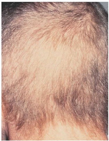 Anagen arrest causes severe, diffuse hair loss.