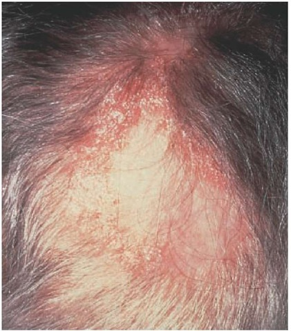 Atrophic scarring with erythema, scaling, telangiectasia, and follicular spines are characteristic of discoid lupus erythematosus.
