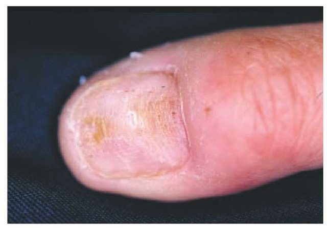 Stacking of transverse linear grooves traversing the entire length of the central nail plate, resulting from the repeated picking of the proximal nail fold margin (habit-tic deformity). Note the marked hypertrophy of the lunula, which is typical of this disorder.