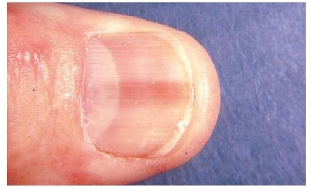 Melanonychia striata (longitudinal pigmented band) produced by a melanocytic nevus of the nail matrix. A high index of suspicion for subungual melanoma is very important when a longitudinal pigmented band of the nail is identified.