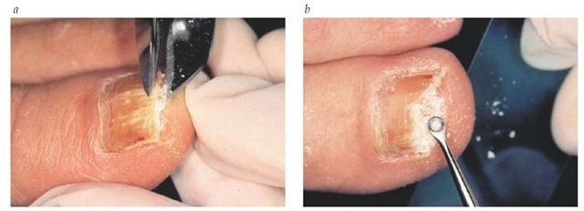 (a) When obtaining a nail specimen for potassium hydroxide (KOH) preparation, it is important to expose the affected nail bed by first trimming away and discarding the distal, separated (onycholytic) nail plate. (b) Small specimen fragments of subungual hyperkeratosis of the nail bed and exposed undersurface of the nail plate are effectively obtained using a small curette. The smaller fragments are more easily dissolved by KOH, allowing for more accurate microscopic visualization, and can be easily plated on fungal culture medium.