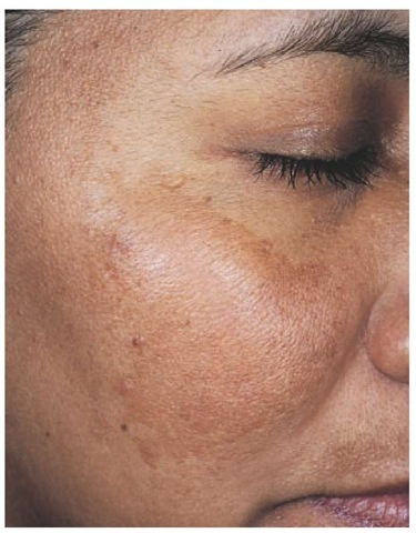 Melasma is characterized by hyperpigmentation of the cheek, forehead, and upper lip.
