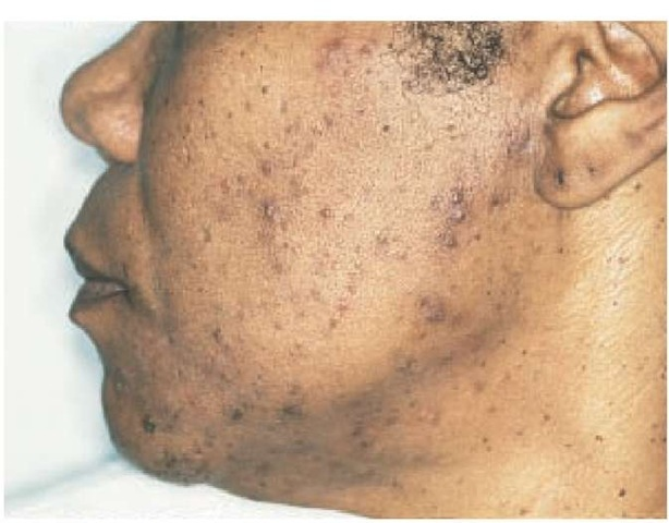 Postinflammatory hyperpigmentation of the face may be secondary to acne vulgaris.