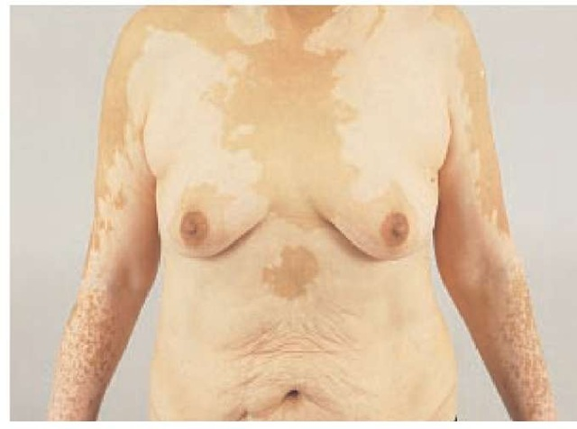 Vitiligo is indicated by generalized patches of depigmentation of the trunk.