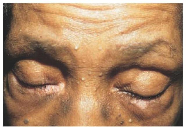 A patient with Vogt-Koyanagi-Harada syndrome shows periorbital depigmentation.