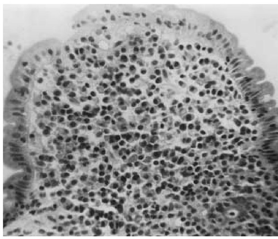 Small intestinal biopsy specimen from a patient with primary intestinal lymphoma shows a single broadened villus (magnification: 400x). The epithelium is composed of normal columnar cells, but the lamina propria is packed with plasma cells and other mononuclear cells. Surgical biopsies in this patient revealed evidence of generalized subepithelial histiocytic lymphoma.