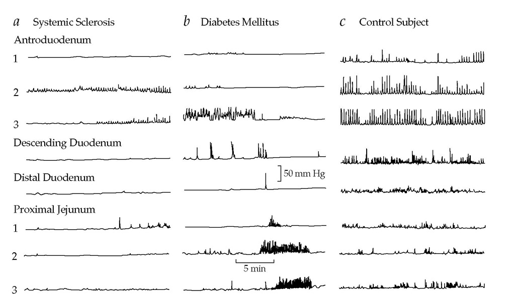 Postprandial manometric profiles of patients with small bowel dysmotility caused by myopathy (a) and neuropathy (b), compared with a healthy control subject (c).