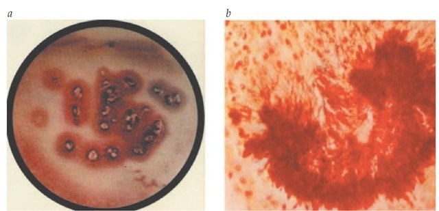 Sulfur granules are a characteristic feature of Actinomyces infection. (a) Gross appearance in exudates. (b) Histologic appearance in infected tissue.