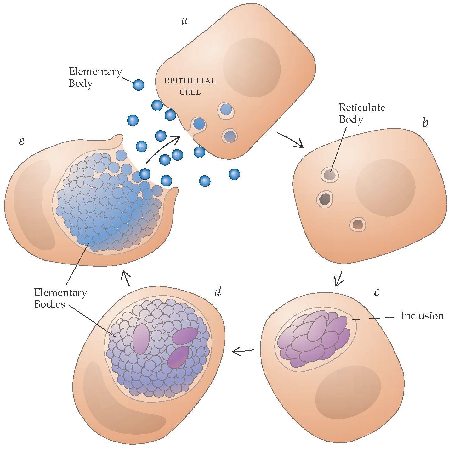 Схема лечения уреаплазмы у женщин и микоплазмы