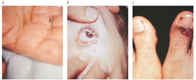 Findings on physical examination of patients with endocarditis. (a) Erythematous, palpable, nontender lesion at the base of the first finger consistent with a Janeway lesion. (b) Conjunctival petechiae. (c) Pustulonecrotic septic embolic lesions at the base of the nail of the right great toe and at the medial aspect of the left great toe at the level of the distal interphalangeal joint.