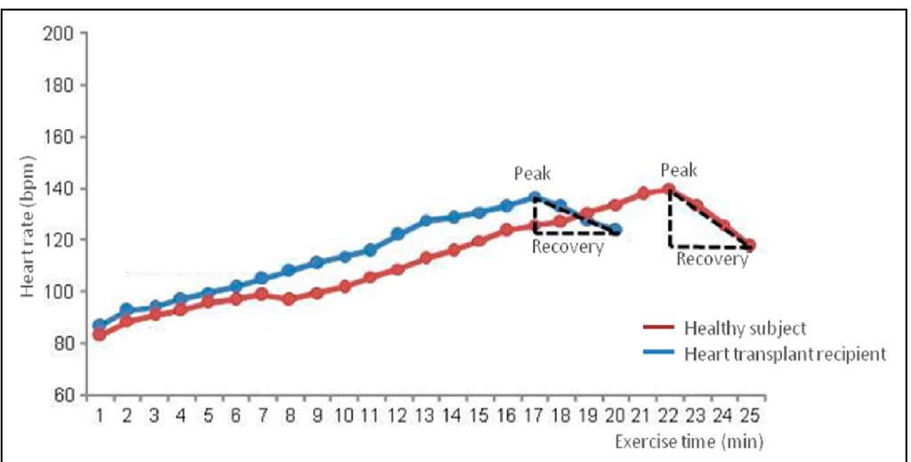 HR representation after a 12-week exercise program in a healthy subject (in red) and in a heart transplantation recipient (in blue).