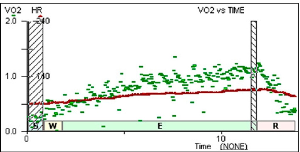 1. Response in recent (5 month) post transplant recipients. HR in red, VO2 in green.