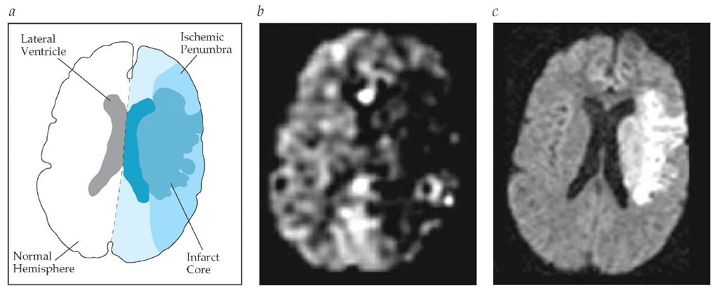 Magnetic resonance imaging scan showing perfusion-diffusion mismatch in acute ischemic stroke. The mismatch between diffusion and perfusion abnormalities may represent the ischemic penumbra (a). This patient presented with right hemiparesis, right-visual-field impairment, right sensory loss, and aphasia. The area of decreased perfusion (b) is much larger than the area identified on diffusion imaging (c), suggesting that the surrounding tissue may still be salvageable.