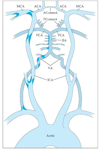 Cerebrovascular anatomy and common sites of atherosclerosis are shown. The internal carotid artery (ICA) enters the skull, and its first major branch is the ophthalmic artery to the eye. Next are the anterior choroidal artery and the posterior communicating artery (PCommA). The PCommA connects the anterior circulation to the posterior circulation. The ICA then terminates as it divides into the anterior cerebral artery (ACA) and the middle cerebral artery (MCA). The vertebral arteries (VA) enter the skull and merge at the inferior border of the pons to form the basilar artery (BA). The BA then terminates as it divides into the two posterior cerebral arteries (PCA). (ACommA—anterior communicating artery)