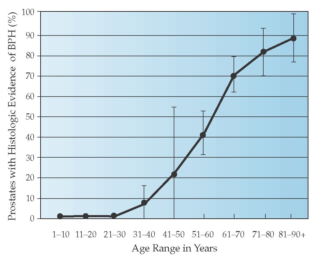 benign prostatic hyperplasia prevalence