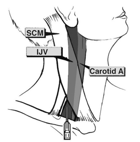 The technique used in our unit for inserting jugular bulb catheters. The junction between the sternal and clavicular heads of the sternocleidomastoid muscle is localized and the skin is punctured under ultrasound guidance with a 16 gauge 5.25 inch Angiocath catheter (Becton and Dickinson) mounted with a 5 ml syringe. During gentle aspiration, the needle is passed in a cranial direction for 1-2 cm, at an angle of 15-20° in the sagittal plane. Once the vein is entered, the catheter is advanced over the needle until a slight elastic resistance is felt, or when the tip of the catheter is estimated to be just behind the mastoid process. SCM, sternocleidomastoid muscle; IJV, internal jugular vein; carotid A, carotid artery.