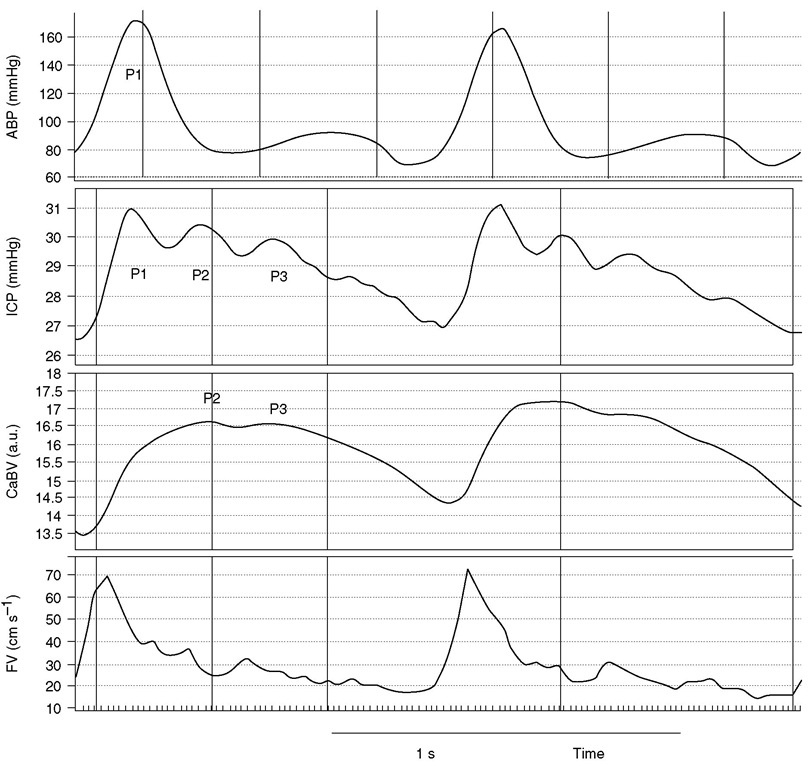Morphology of the pulse waveform of intracranial pressure (ICP), showing the distinctive peaks P1, P2 and P3. P1 is usually associated with systole of arterial blood pressure (ABP). Peaks P2 and P3 (delayed) are associated with blood volume transport. The arterial blood volume (CaBV) curve may be estimated by time integration of flow velocity (FV) detected with transcranial Doppler ultrasonography. Peaks P2 and P3 seem to be associated with arterial blood volume changes and the pressure-volume compensatory reserve. a.u., Arbitrary units.