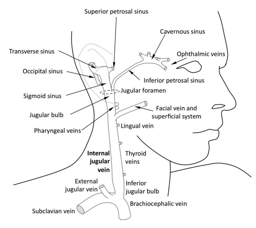 Schematic diagram of the right jugular bulb and internal jugular vein. The majority of the cerebral venous blood drains into the superior jugular bulb either indirectly via the sigmoid sinus or directly in the case of the inferior petrosal sinus. Significant extracerebral contamination of the internal jugular venous blood occurs just below the jugular bulb, most notably from the facial vein.