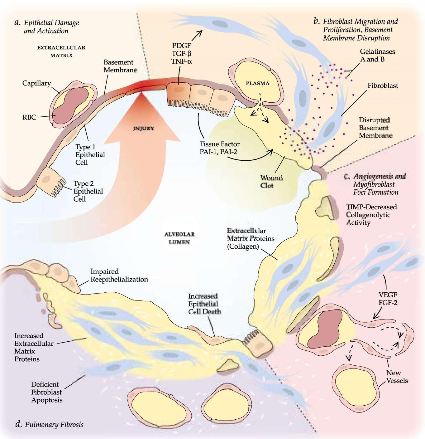 steroids for organizing pneumonia