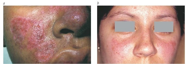 Lupus facial butterfly rash images would