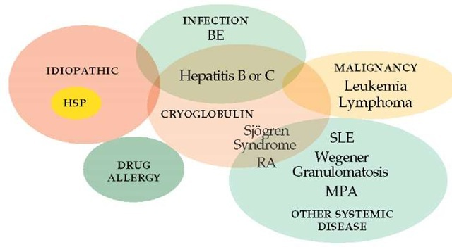 "A Venn diagram illustrates the relations between the causes of small vessel (""hypersensitivity"") vasculitis. (BE—bacterial endocarditis; HSP—Henoch-Schonlein purpura; MPA—microscopic polyangiitis; RA—rheumatoid arthritis; SLE—systemic lupus erythematosus)"