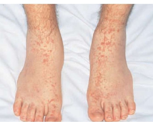 Palpable purpura of the distal extremities is the most common presentation of small vessel vasculitis.