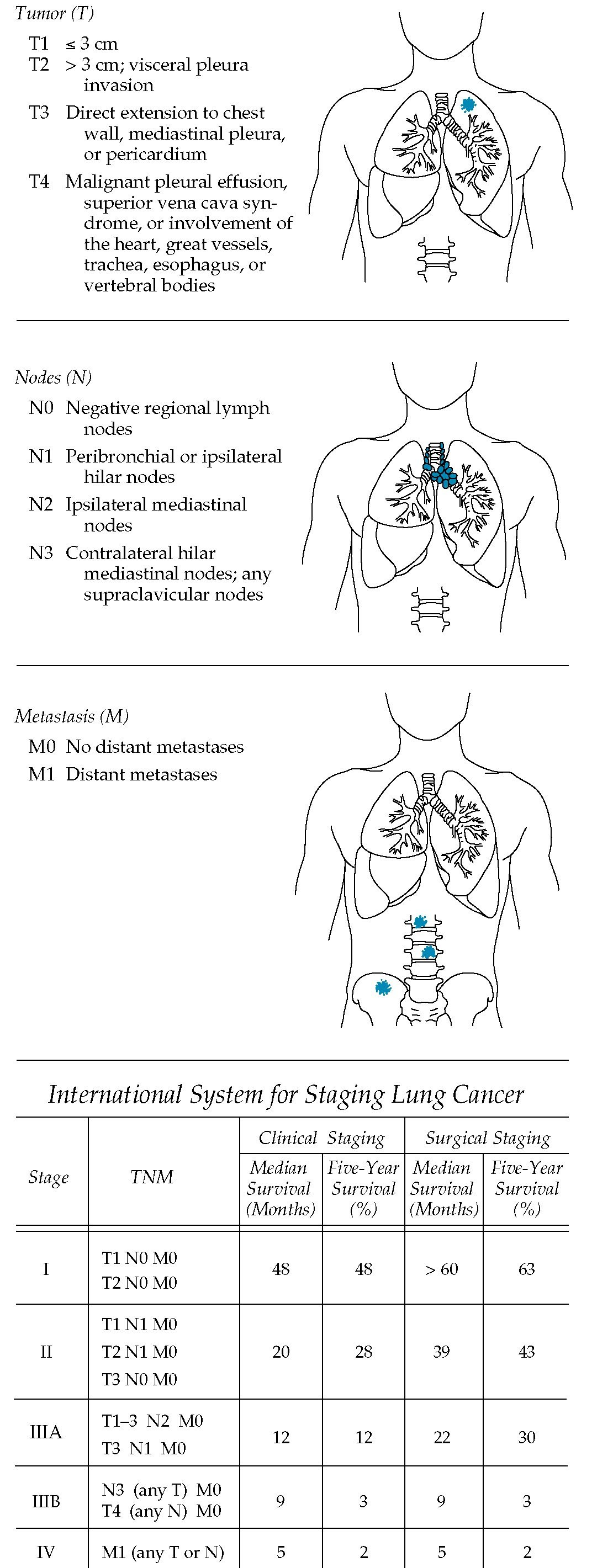 An international TNM four-stage system is used in the clinical and surgical evaluation of lung cancer. Definitions of TNM categories are simplified.