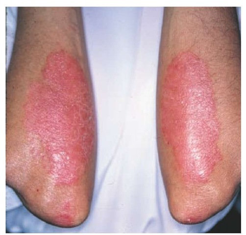 Studies have shown that streptococcal infection may exacerbate chronic plaque psoriasis 2