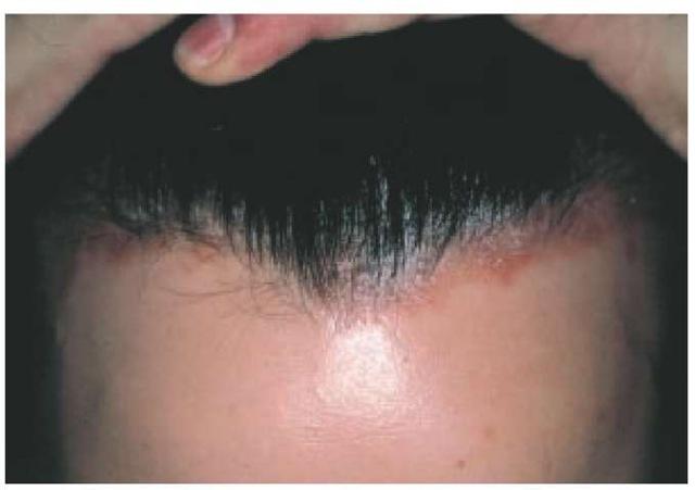psoriasis arthritis vorbeugung alternativ behandeln.jpg