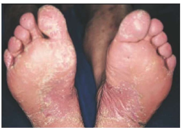 Treatment of psoriasis depends on the severity of the disease 2