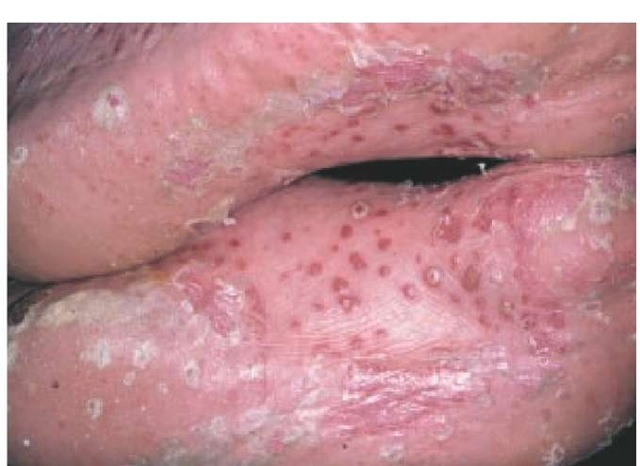 Annular pustular psoriasis presents as a subacute or chronic form of generalized pustular psoriasis 3