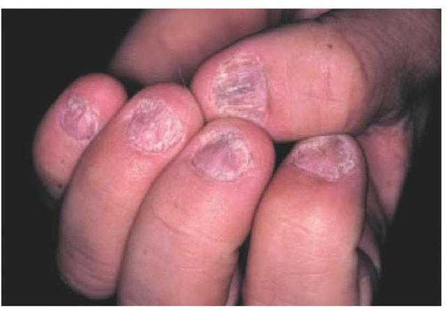 Figure 1: Plaque psoriasis, erythrodermic psoriasis and generalized pustular psoriasis 2