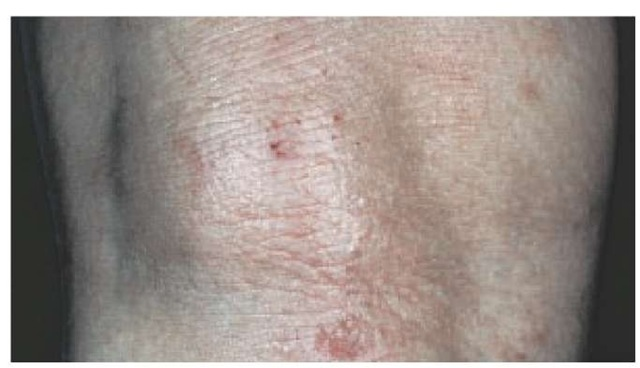 Lichenified patches appear after chronic rubbing of eczematous patches. These lesions are characteristic of chronic allergic contact dermatitis and atopic dermatitis.