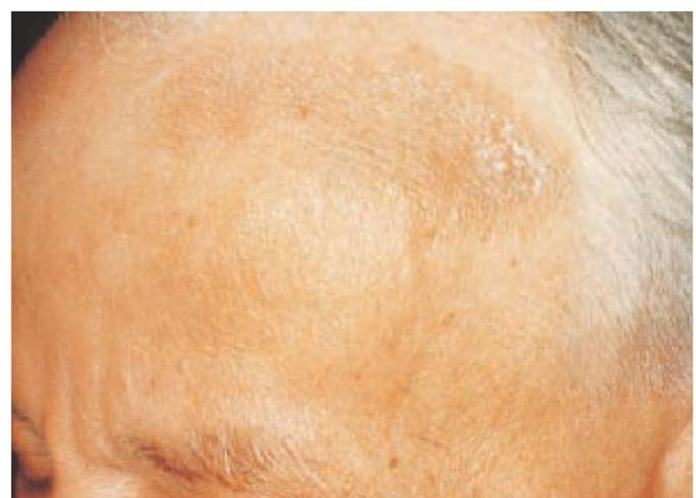 Chronic eczematous dermatitis, with scaling, lichenification, and hyperpigmentation, was caused by an allergy to leather components in a hatband.