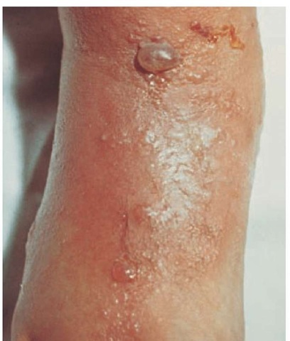 Acute contact dermatitis caused by wearing sandals typically involves the dorsal surface of the feet.