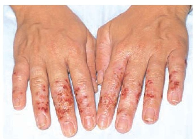 Hairdresser with acute allergic contact dermatitis of the hands, caused by glyceryl thioglycolate.