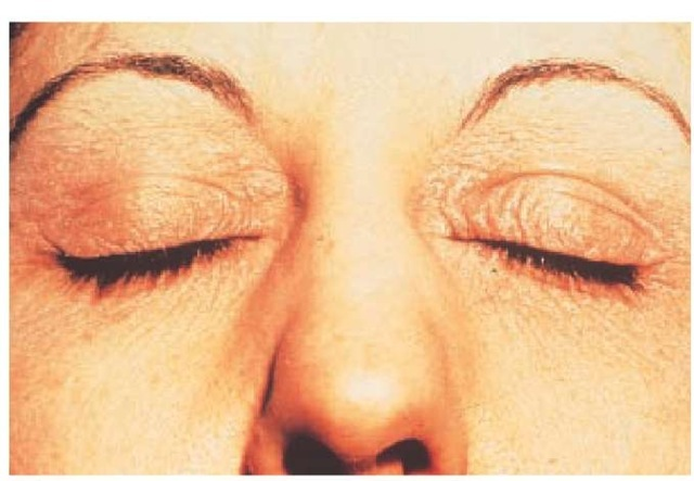 Ectopic allergic contact dermatitis of the eyelids from tosylamide formaldehyde resin in nail polish.