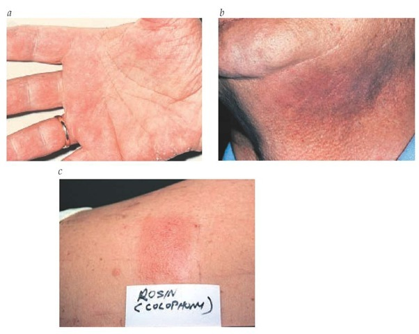 Allergic contact dermatitis of the hands (a) and neck (b), with a positive patch test to rosin (colophony) (c).