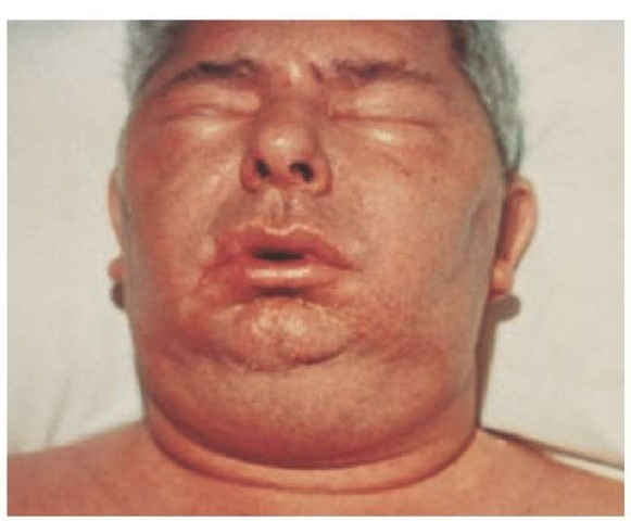 edem articular alergic