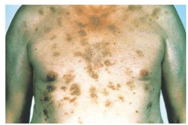 Pemphigus foliaceus developed in this 64-year-old man taking enalapril.